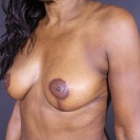 After Photo - Breast Lift - Case #13679 - Vertical Mastopexy - Oblique View