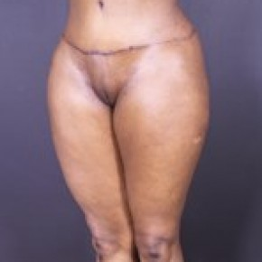 After Photo - Liposuction - Case #13680 - Abdominoplasty with Liposuction to Hips and Flanks, Thighs - Oblique View