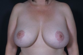Before Photo - Breast Revision - Case #13682 - Bilateral Breast Implant Removal - Frontal View