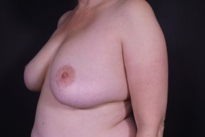After Photo - Breast Revision - Case #13682 - Bilateral Breast Implant Removal - Oblique View