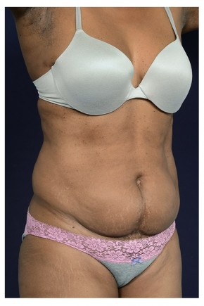 Before Photo - Liposuction - Case #13703 - Oblique View