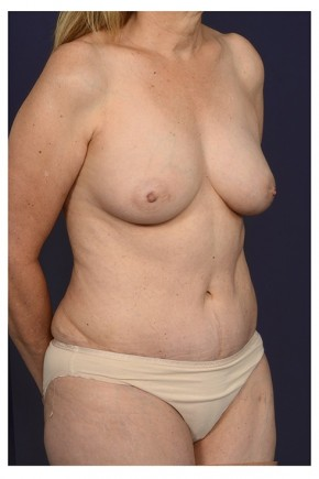 After Photo - Mommy Makeover - Case #13705 - Oblique View