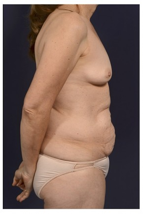 Before Photo - Mommy Makeover - Case #13705 - Lateral View