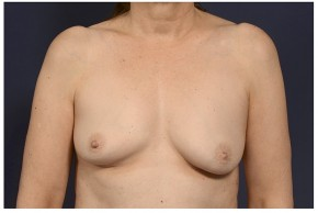 Before Photo - Fat Transfer - Case #13706 - Fat Grafting of Breasts - Frontal View