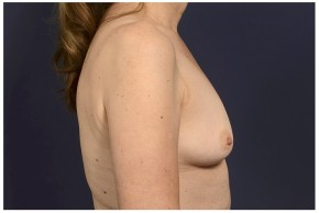 Before Photo - Fat Transfer - Case #13706 - Fat Grafting of Breasts - Lateral View