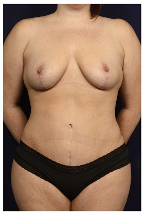 After Photo - Mommy Makeover - Case #13707 - Frontal View