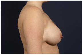 Before Photo - Breast Reduction - Case #13708 - Bilateral Breast Reduction - Lateral View