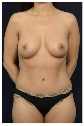 After Photo - Mommy Makeover - Case #13719 - Frontal View