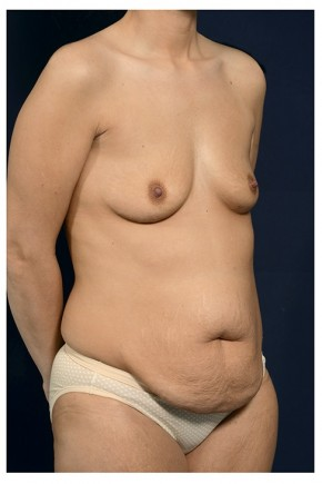Before Photo - Mommy Makeover - Case #13719 - Oblique View