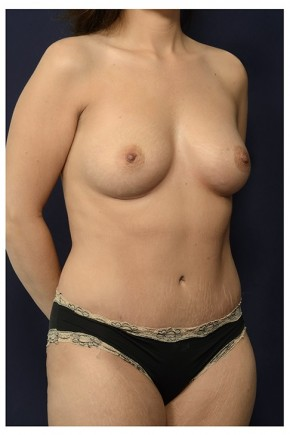 After Photo - Mommy Makeover - Case #13719 - Oblique View
