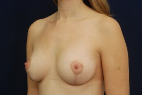 After Photo - Breast Augmentation - Case #13723 - Oblique View