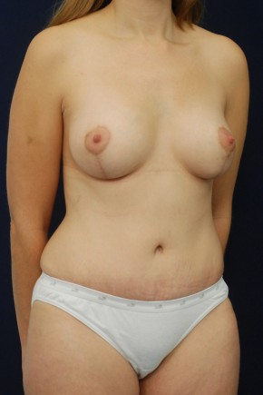 After Photo - Mommy Makeover - Case #13724 - Oblique View