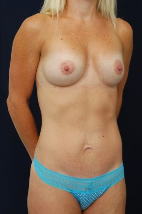 After Photo - Mommy Makeover - Case #13735 - Oblique View