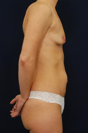 Before Photo - Mommy Makeover - Case #13735 - Lateral View