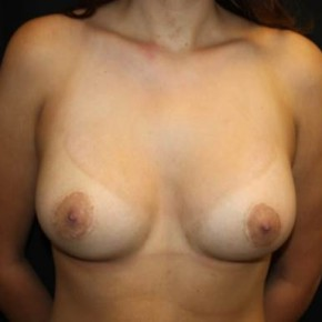After Photo - Breast Lift - Case #13753 - Breast lift with breast implants - 23 year old female. - Frontal View