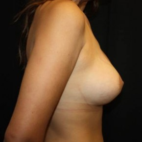 After Photo - Breast Lift - Case #13753 - Breast lift with breast implants - 23 year old female. - Lateral View