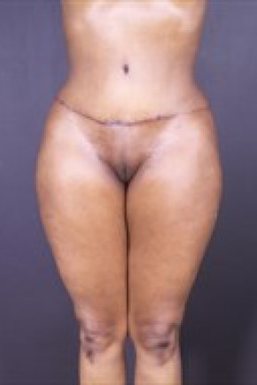 After Photo - Liposuction - Case #13680 - Abdominoplasty with Liposuction to Hips and Flanks, Thighs - Frontal View