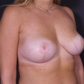 After Photo - Breast Lift - Case #13758 - Breast LIft - Oblique View
