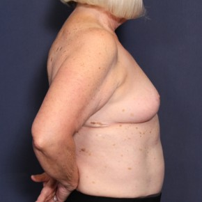 After Photo - Breast Reduction - Case #13772 - 69 Year Old Female - Lateral View