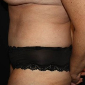 After Photo - Tummy Tuck - Case #13774 - Abdominplasty - 43 year old female. - Lateral View