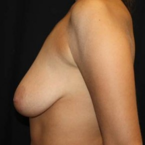 Before Photo - Breast Lift - Case #13776 - Breast Lift with Implants - 28 year old female. - Lateral View