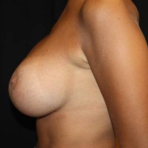 After Photo - Breast Lift - Case #13776 - Breast Lift with Implants - 28 year old female. - Lateral View