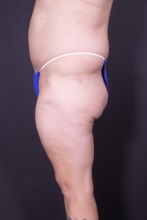 After Photo - Plastic Surgery After Dramatic Weight Loss - Case #13786 - Bodylift - Lateral View