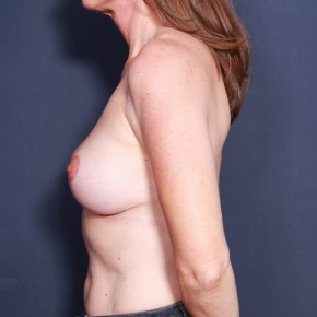 After Photo - Breast Lift - Case #13827 - 49 Years Old Female - Lateral View