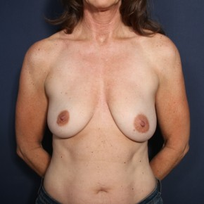 Before Photo - Breast Lift - Case #13827 - 49 Years Old Female - Frontal View