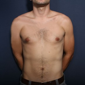 Before Photo - Gynecomastia - Case #13828 - 26 Years Old Male - Frontal View