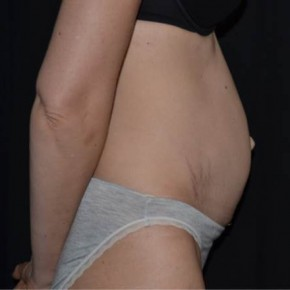 Before Photo - Tummy Tuck - Case #13831 - Abdominoplasty - 42 year old female - Lateral View