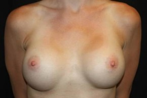 After Photo - Breast Revision - Case #13842 - Breast Implant Exchange - 33 year old female - Frontal View