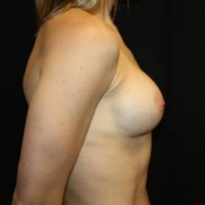 Before Photo - Breast Revision - Case #13842 - Breast Implant Exchange - 33 year old female - Lateral View