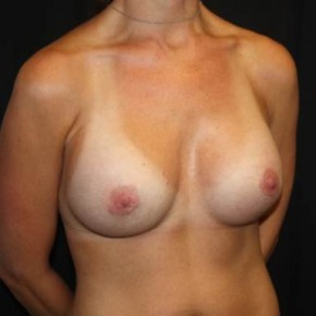 After Photo - Breast Revision - Case #13843 - Breast Implant Exchange - 37 year old female - Oblique View