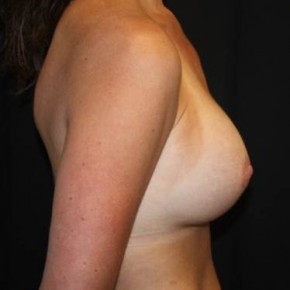 After Photo - Breast Revision - Case #13843 - Breast Implant Exchange - 37 year old female - Lateral View