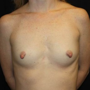 Before Photo - Breast Augmentation - Case #13923 - Breast Augmentation - 40 year old female - Frontal View