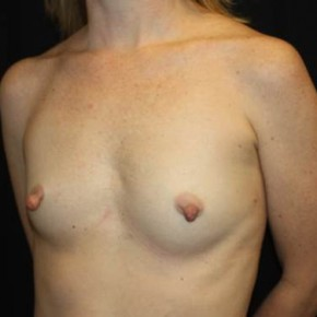 Before Photo - Breast Augmentation - Case #13923 - Breast Augmentation - 40 year old female - Oblique View