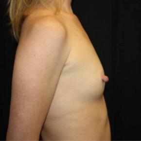 Before Photo - Breast Augmentation - Case #13923 - Breast Augmentation - 40 year old female - Lateral View