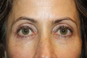 After Photo - Eyelid Surgery - Case #13924 - Upper LidBlepharoplasty & Brow Lift - 50 year old female - Frontal View