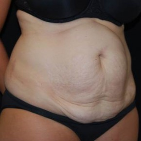 Before Photo - Tummy Tuck - Case #13925 - Abdominoplasty - 39 year old female - Oblique View