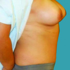 After Photo - Tummy Tuck - Case #13928 - Mommy Makeover- Tummy Tuck, Liposuction, Breast Augmentation - Lateral View