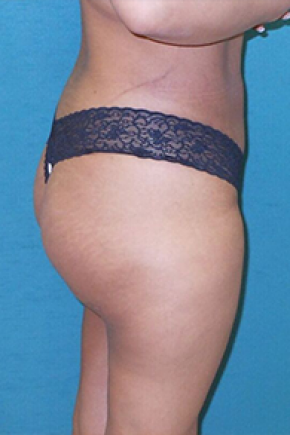 After Photo - Buttock Augmentation - Case #13929 - Buttock Augmenation with implants and liposuction of the abdomen - Lateral View