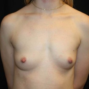 Before Photo - Breast Augmentation - Case #13943 - Breast Augmentation - 28 year old female - Frontal View