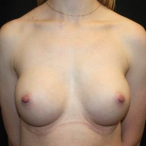 After Photo - Breast Augmentation - Case #13943 - Breast Augmentation - 28 year old female - Frontal View