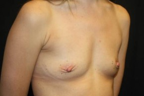 Before Photo - Breast Augmentation - Case #13944 - Breast Augmentation - 33 year old female - Oblique View