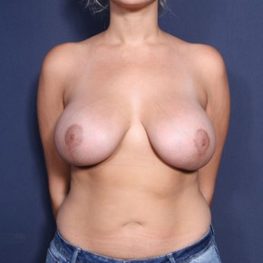 After Photo - Breast Lift - Case #13951 - 25 Years Old Female - Frontal View