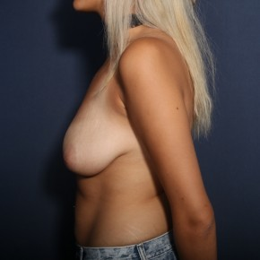 Before Photo - Breast Lift - Case #13951 - 25 Years Old Female - Lateral View