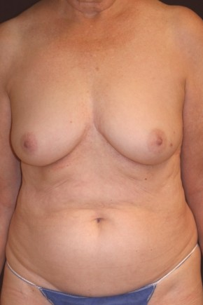 Before Photo - Breast Reconstruction - Case #14052 - 72 y/o - Immediate Left DIEP Breast Flap Reconstruction - Frontal View