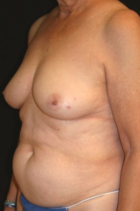 Before Photo - Breast Reconstruction - Case #14052 - 72 y/o - Immediate Left DIEP Breast Flap Reconstruction - Oblique View