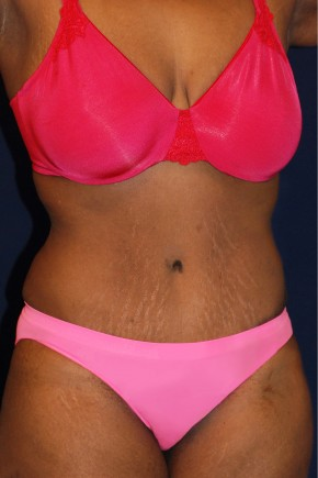 After Photo - Tummy Tuck - Case #14053 - Abdominoplasty - Oblique View